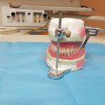 Bonnes raisons de choisir le valplast dentaire ?